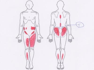 腰痛の施術のポイント